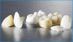 Full Porcelain (metal free) Crowns Abroad